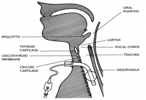 Tracheostomy Care- Indications|Types|Care