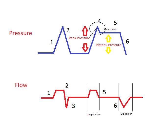 Mechanical Ventilation Peak Pressure And Plateau Pressure