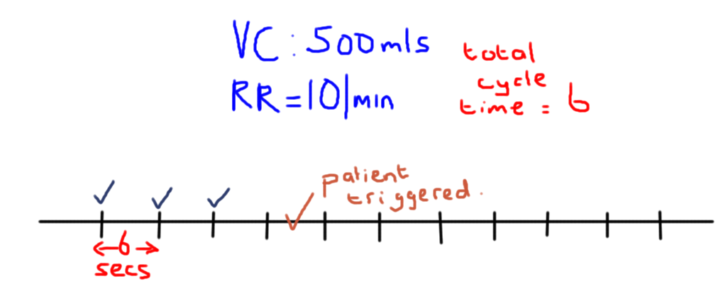 mechanical ventilation modes of ventilation i critical care