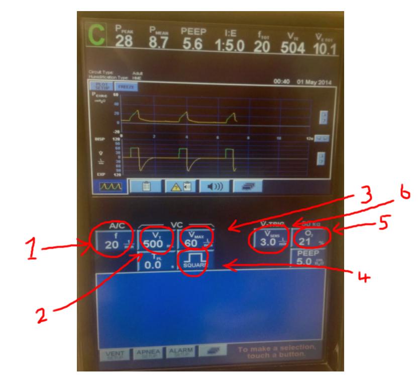 how to read a ventilator machine