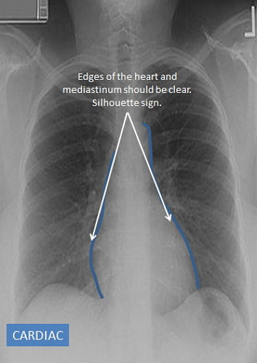 Are the edges of the heart and diaphragm clear?