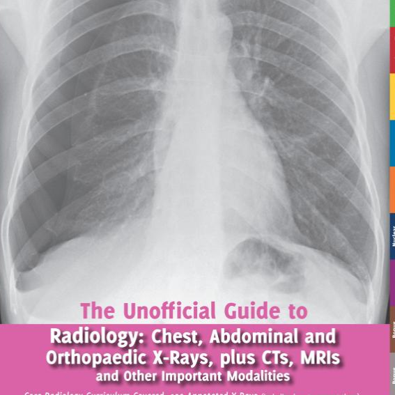 Chest X Ray Survival Guide Pdf